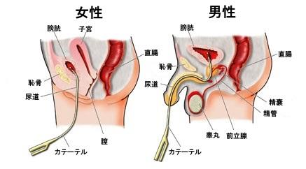 尿道カテーテル